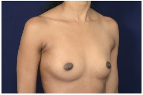 Before Photo - Breast Augmentation - Case #18232 - Oblique View