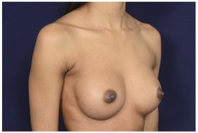 After Photo - Breast Augmentation - Case #18232 - Oblique View