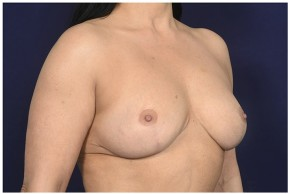 After Photo - Breast Reduction - Case #18233 - Oblique View