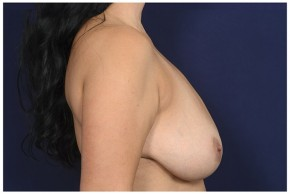 Before Photo - Breast Reduction - Case #18233 - Lateral View