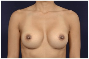 After Photo - Breast Augmentation - Case #18235 - Frontal View