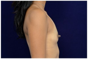 Before Photo - Breast Augmentation - Case #18235 - Lateral View