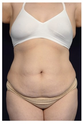 Before Photo - Tummy Tuck - Case #18237 - Abdominoplasty - Frontal View