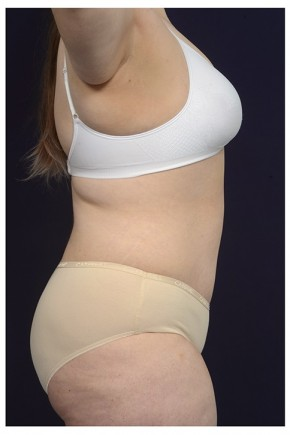 After Photo - Tummy Tuck - Case #18237 - Abdominoplasty - Lateral View