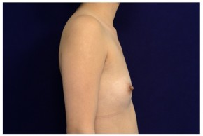 Before Photo - Breast Augmentation - Case #18239 - Lateral View