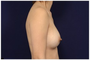 After Photo - Breast Augmentation - Case #18239 - Lateral View