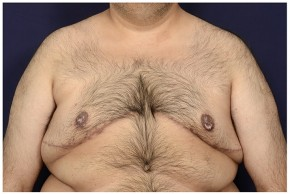 After Photo - Gynecomastia - Case #18241 - Frontal View