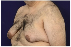 Before Photo - Gynecomastia - Case #18241 - Oblique View
