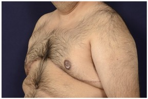 After Photo - Gynecomastia - Case #18241 - Oblique View