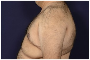After Photo - Gynecomastia - Case #18241 - Lateral View