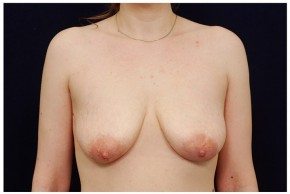 Before Photo - Breast Lift - Case #18243 - Augmentation Mastopexy - Frontal View