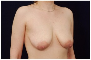 Before Photo - Breast Lift - Case #18243 - Augmentation Mastopexy - Oblique View