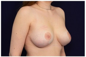 After Photo - Breast Lift - Case #18243 - Augmentation Mastopexy - Oblique View
