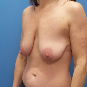 Before Photo - Breast Lift - Case #18250 - 44 year old  -  Bilateral Breast Lift  - 3 months post-op - Oblique View