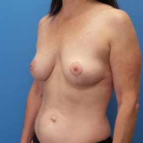 After Photo - Breast Lift - Case #18250 - 44 year old  -  Bilateral Breast Lift  - 3 months post-op - Oblique View