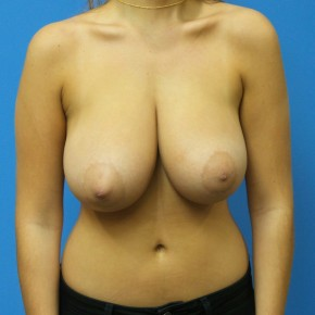 Before Photo - Breast Reduction - Case #18264 - 20 year old  -  Bilateral Breast Reduction   -  3 months post-op - Frontal View