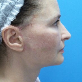 After Photo - Facelift - Case #18276 - 57 year old  -  Facelift/Submental Liposuction  -  2 months post-op - Lateral View
