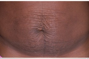 Before Photo - Tummy Tuck - Case #18274 - Frontal View