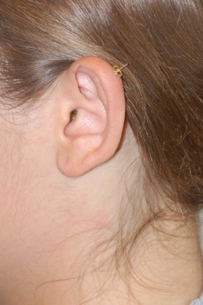 Before Photo - Ear Surgery - Case #18272 - Otoplasty (Ear Surgery) - Frontal View