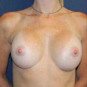 After Photo - Breast Augmentation - Case #18279 - Breast Augmentation for a Rock Climber - Frontal View
