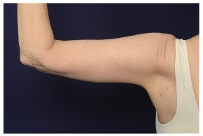 After Photo - Upper Arm Lift - Case #18280 - Posterior View