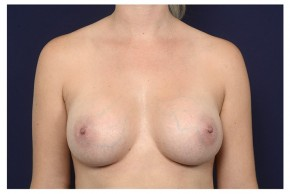After Photo - Breast Augmentation - Case #18282 - Frontal View