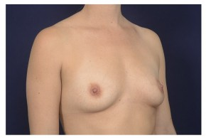 Before Photo - Breast Augmentation - Case #18282 - Oblique View