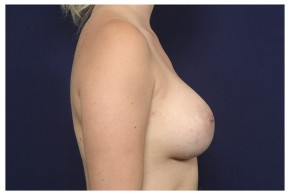 After Photo - Breast Augmentation - Case #18282 - Lateral View