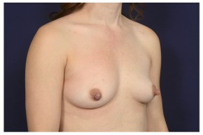 Before Photo - Breast Augmentation - Case #18283 - Oblique View