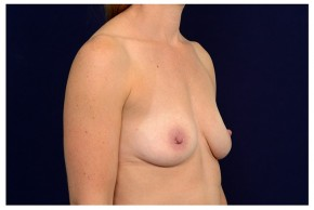 Before Photo - Breast Augmentation - Case #18284 - Oblique View