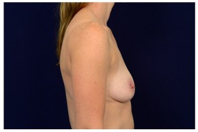 Before Photo - Breast Augmentation - Case #18284 - Lateral View