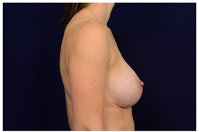 After Photo - Breast Augmentation - Case #18284 - Lateral View