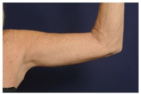 After Photo - Upper Arm Lift - Case #18286 - Frontal View