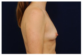 Before Photo - Breast Augmentation - Case #18288 - Lateral View
