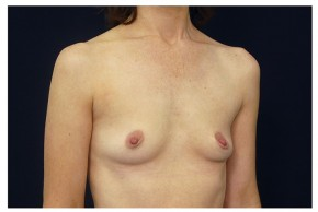 Before Photo - Breast Augmentation - Case #18289 - Oblique View