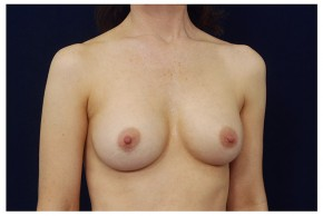 After Photo - Breast Augmentation - Case #18289 - Oblique View
