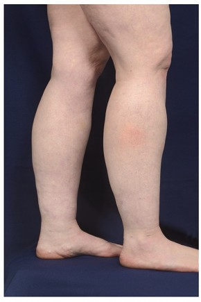 After Photo - Liposuction - Case #18293 - Lower Leg Liposuction - Lateral View