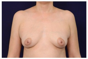 Before Photo - Breast Augmentation - Case #18294 - Frontal View