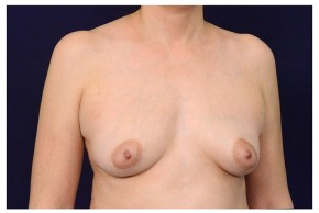 Before Photo - Breast Augmentation - Case #18294 - Oblique View