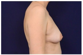 Before Photo - Breast Augmentation - Case #18294 - Lateral View
