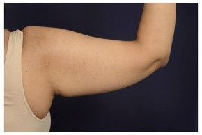 Before Photo - Upper Arm Lift - Case #18296 - Posterior View
