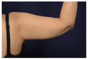 After Photo - Upper Arm Lift - Case #18296 - Posterior View