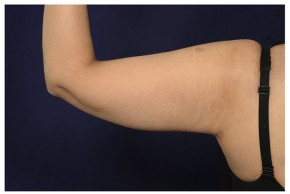 After Photo - Upper Arm Lift - Case #18297 - Posterior View