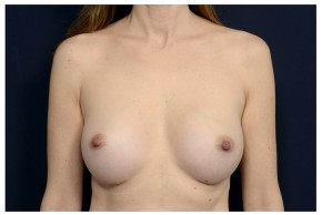 After Photo - Breast Augmentation - Case #18298 - Frontal View