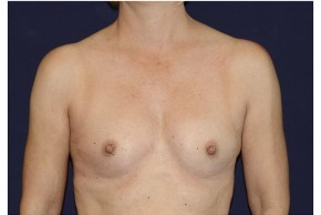 Before Photo - Breast Augmentation - Case #18299 - Frontal View