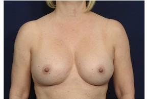 After Photo - Breast Augmentation - Case #18299 - Frontal View