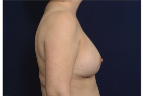 After Photo - Breast Augmentation - Case #18299 - Lateral View