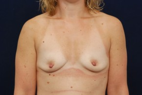 Before Photo - Breast Augmentation - Case #18300 - Frontal View