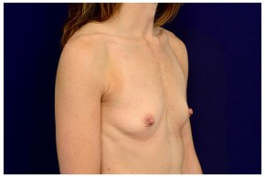 Before Photo - Breast Augmentation - Case #18304 - Oblique View