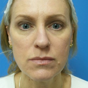 Before Photo - Nose Surgery - Case #18313 - 49 year old  -  Rhinoplasty/Septoplasty/Turbinectomy  -  3 months post-op - Frontal View